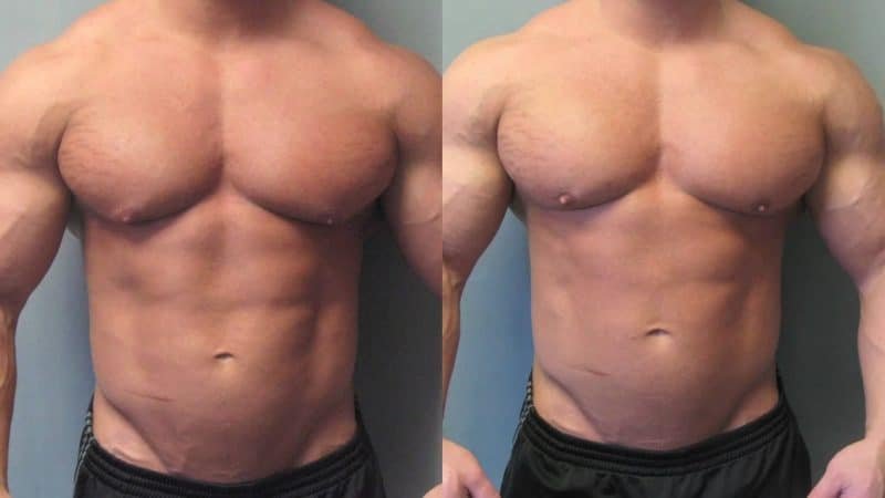 "A case of gynecomastia or ""gyno"" with the characteristic puffy nipples"