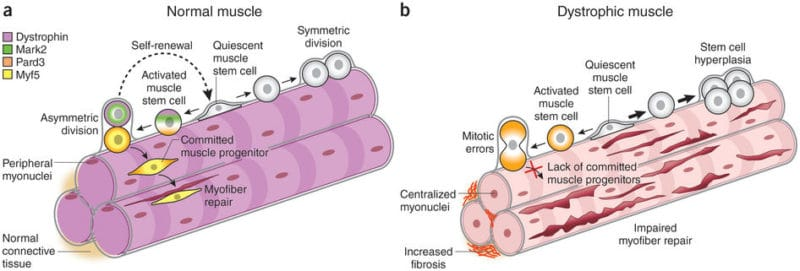 How Duchenne Muscular Dystrophy (DMD) affects the muscle cells
