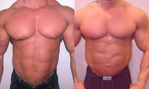 """The development of """"gyno"""" or gynecomastia after cycling with anabolic steroids and pro-hormones without a proper post cycle therapy."""